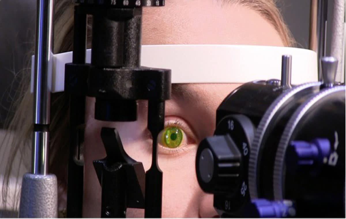 complete_ocular_health_assessment_1-e1620335491962.jpg