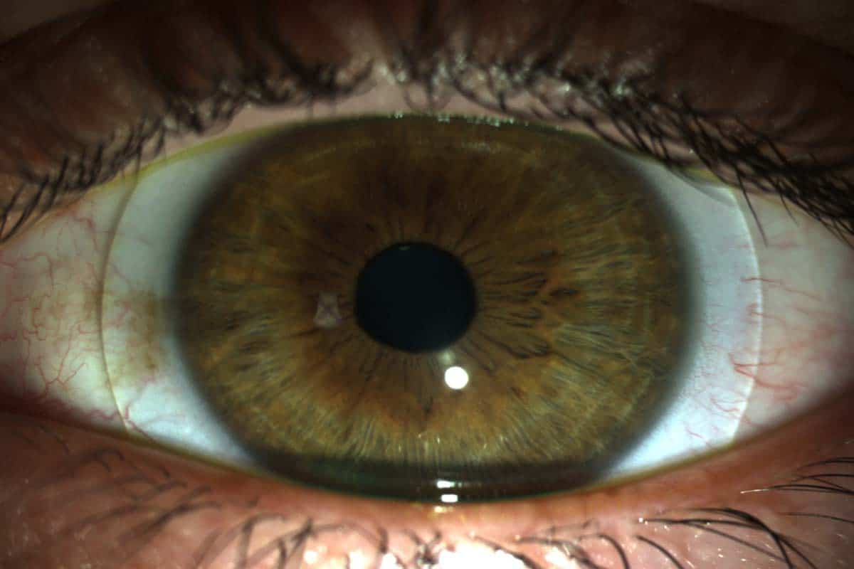 contact_lens_evaluation-1.jpg